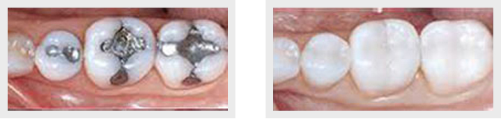 cerec technology richmond hill