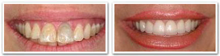 cosmetic dentistry richmond hill