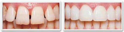 reconstructive dentistry richmond hill