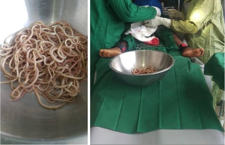 【寄生虫乐园】4岁男童便秘半年求诊剖腹发现过百条蛔虫塞满小肠