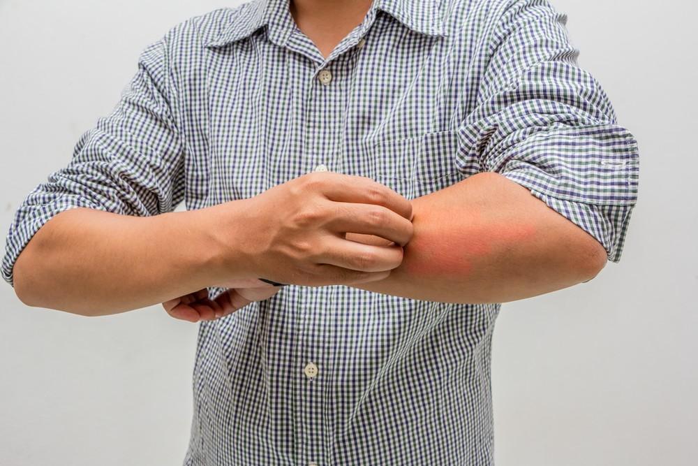 空气干燥是其中一个令皮肤变干的最常见因素。