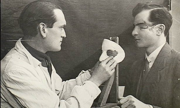 English army medical officed making a mould for a soldier's facial injury- Public Domain_Australian War Memorial (1) ref link : http://www.theguardian.com/world/postcolonial/2014/may/26/broken-gargoyles-the-disfigured-soldiers-of-the-first-world-war