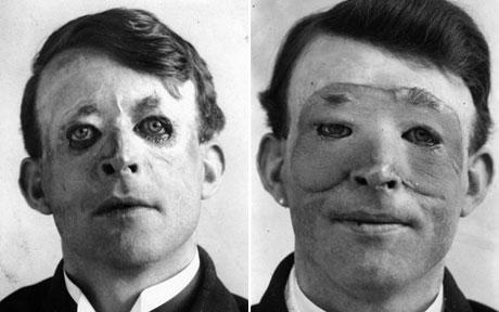 Walter Yeo 1917 surgery ref link :  https://en.wikipedia.org/wiki/Plastic_surgery#/media/File:Walter_Yeo_skin_graft.jpg
