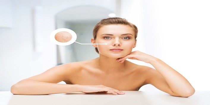 face of woman with dry skin