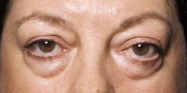 For Under Eye Bags