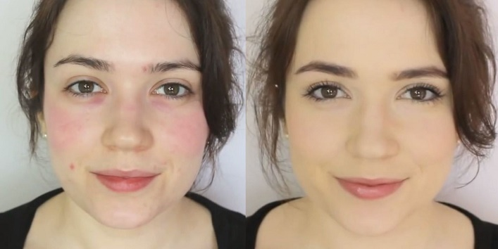 amazing makeup hacks to cover acne and pimples