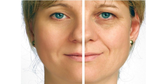 relief from wrinkles