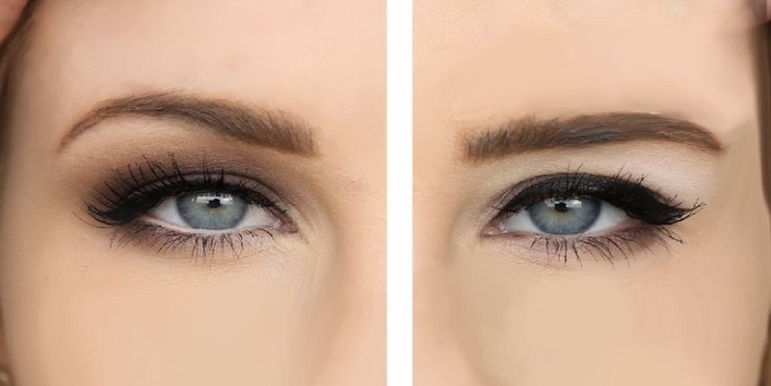 Show-the-eyelids-too-thick