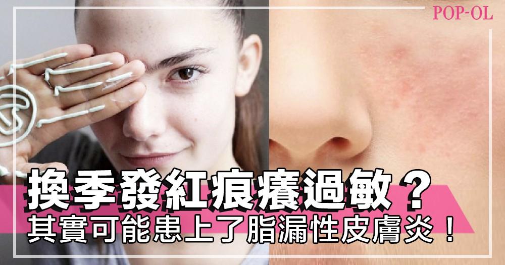 肌膚發紅痕癢脫屑!可能患上了脂漏性皮膚炎,及早就醫,不能忽視的皮膚問題~!