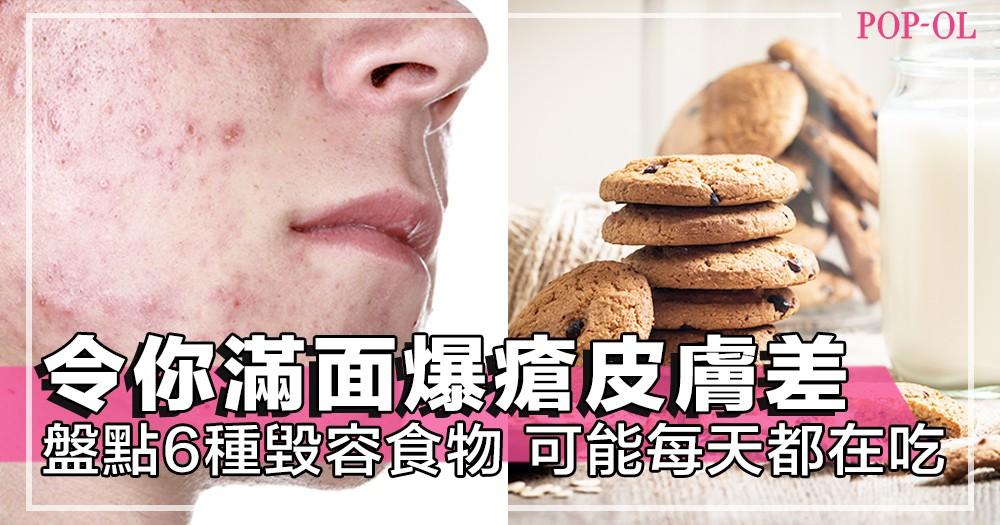 怎樣清潔和護膚都沒用?6種日常生活中常吃的毀容食物,隨時令你暗瘡長滿面,必需注意!
