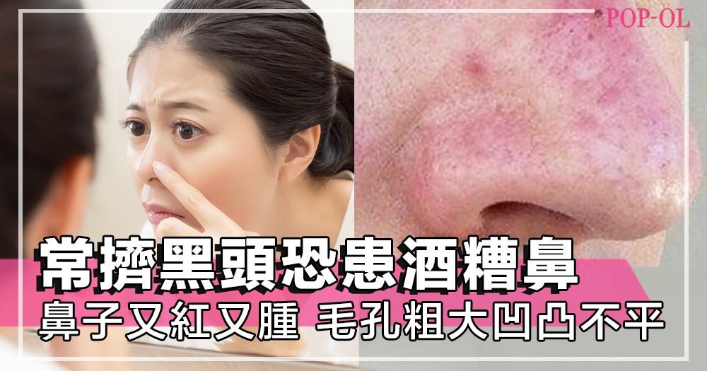 鼻頭經常又紅又腫?可能你已中招!經常擠黑頭隨時患上酒糟鼻,毛孔變大,鼻子肌膚凹凸不平!