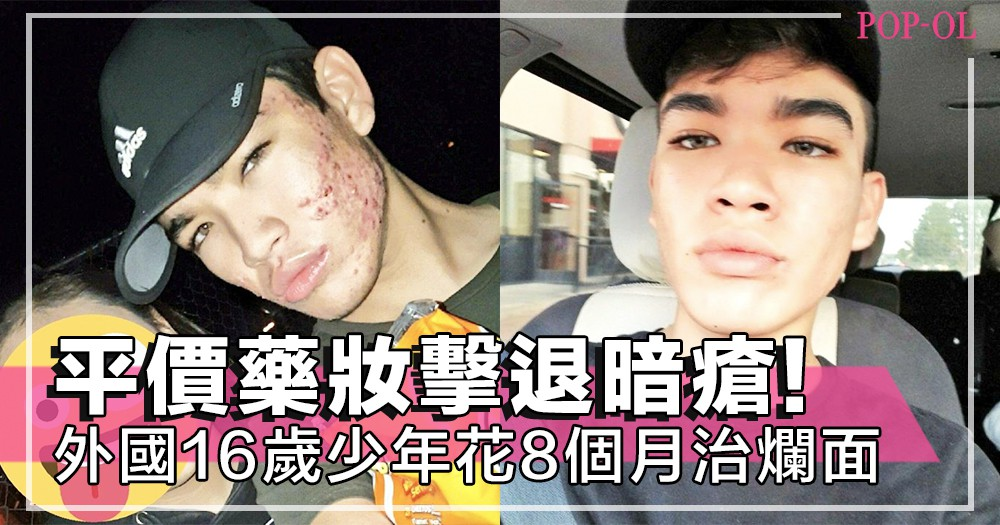 16歲爛面男生8個月擊退暗瘡!公開護膚心得~平價藥妝花費不過800元