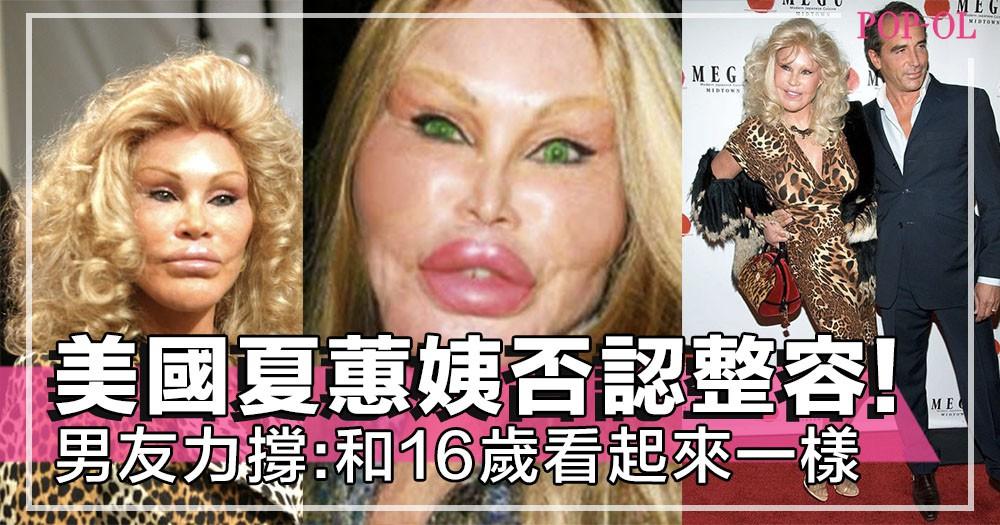 77歲美國富婆人稱「貓女」!外貌一再「進化」~未婚夫:無整容、同16歲一模一樣