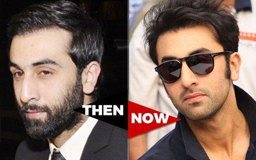 The hair loss tales of bollywood 2 ranbir kapoor pmusecretfo Images