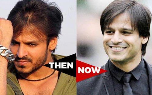 Ranbir Kapoor Before Hair Transplant Ranbeer Kapoor H...