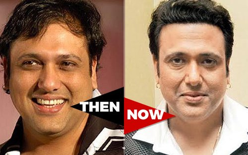 Image result for govinda hair loss