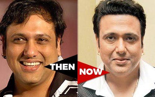 Ranbir Kapoor Before Hair Transplant ranbir kapoor be...