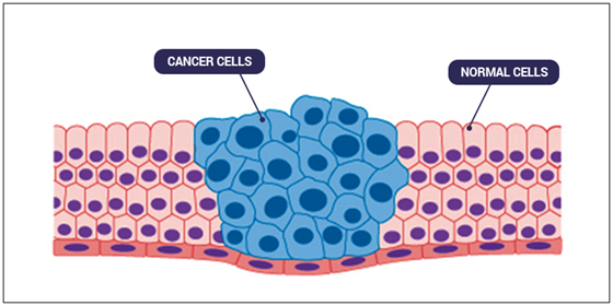 cancer is uncontrolled cell division biology essay Cancer is a disease characterized by uncontrolled, uncoordinated and unwanted cell division  of cancer stages treatment diagnosis mutations hereditary biology essay.