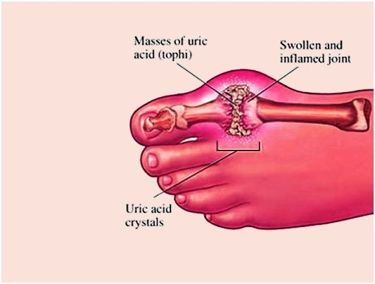 pseudo gout natural treatment alternative treatments for gout