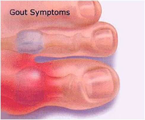 gout symptoms causes and treatments Causes of gout gout occurs when  dealing with an attack of gout without treatment the attack usually resolves  typical symptoms of polymyalgia rheumatica.