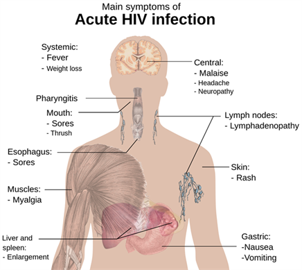 aids - types of hiv, symptoms of aids | prevention & treatment, Human Body