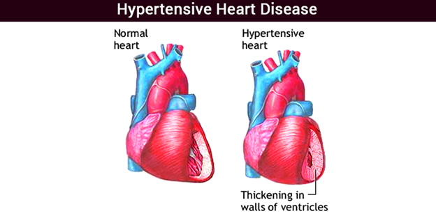 biology essays heart disease Essays related to coronary heart disease 1  you are at greater risk of having a heart attack (heart disease risk factors,  as coronary heart disease develops,.