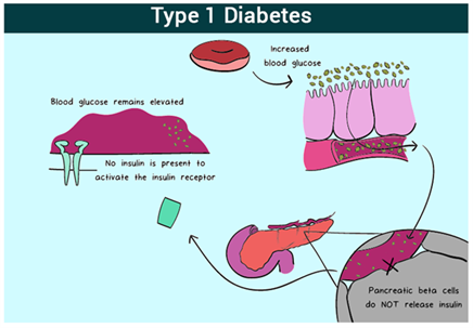 the general symptoms of diabetes mellitus essay The general symptoms of diabetes mellitus essay 3167 words | 13 pages a  person suffer from diabetes mellitus has high blood sugar if left untreated  explain.