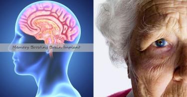 初創公司 Kernel 計劃研發人工腦部裝置,協助失智症患者重獲記憶能力
