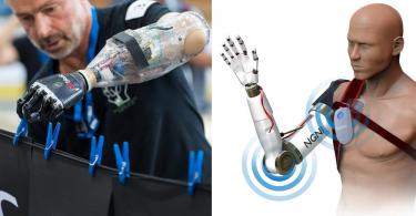 【醫療科技】英國科學家研發仿生手臂,可靠意念控制義肢