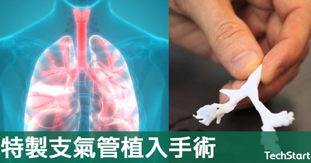 【全球首例】3D打印再救人一命,法國完成特製支氣管植入手術