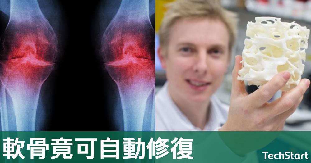 【神奇科技】生物玻璃能自動修復,可治療膝蓋軟骨損傷