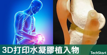 【神奇科技】3D打印水凝膠植入物,有望修復膝蓋損傷