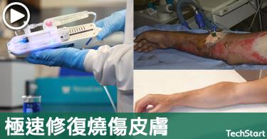 【皮膚救星】不會留下明顯疤痕,「幹細胞皮膚槍」極速修復燒傷皮膚