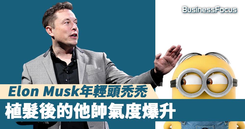 【有錢有頭髮】Elon Musk年輕頭禿禿,植髮後帥氣度爆升
