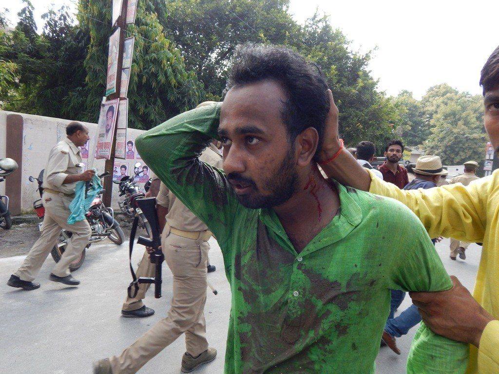 گزشتہ 8 ستمبر کو پولس کے ظالمانہ لاٹھی چارج میں زخمی طالب علم۔ فوٹو : منوج سنگھ