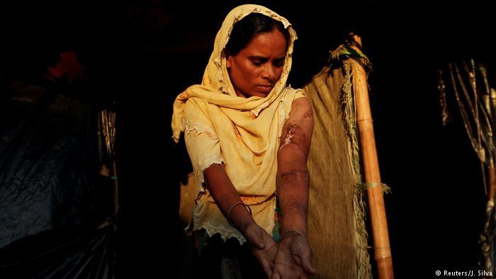راکھین سے فرار کے بعد بنگلہ دیش میں ایک روہنگیا مہاجر خاتون اپنے جسم پر تشدد کے نشانات دکھاتے ہوئے