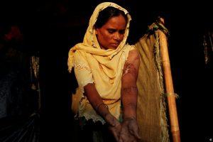 میانمار سے زخمی حالت میں بنگلہ دیش پہنچنے والی ایک روہنگیا مسلم خاتون مہاجر