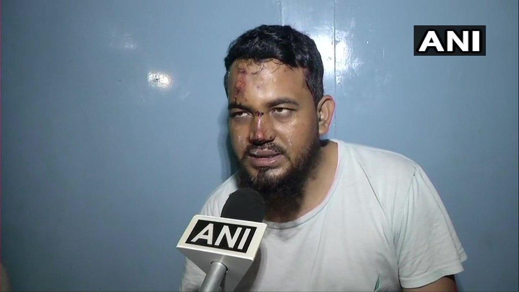محمد مومن، جن کا الزام ہے کہ ان کو جئے شری رام نہ بولنے کی وجہ سے کار سے ٹکر مار دی گئی (فوٹو: اے این آئی)