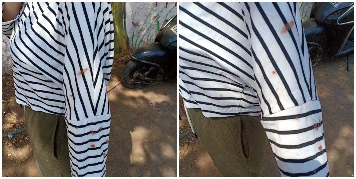 منی پور کی خاتون کے کپڑوں پر تھوک کے نشان(فوٹو: فیس بک)