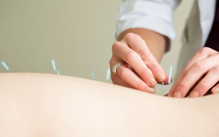 Acupuncture for IVF