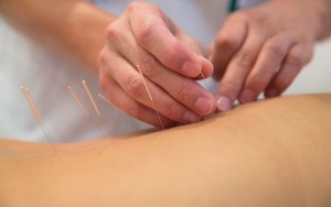 TCM acupuncture for back