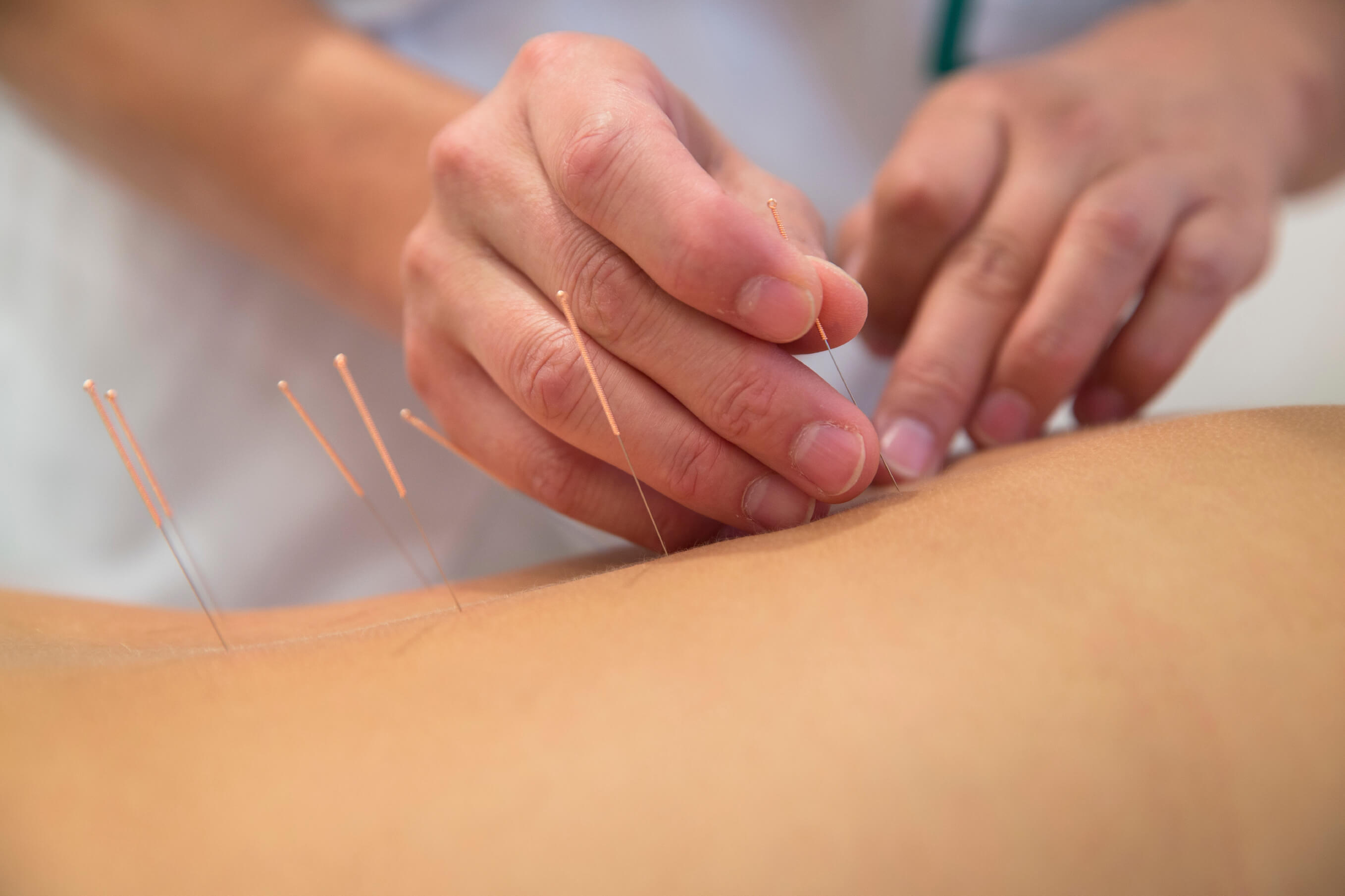 internal acupuncture for backpain 8