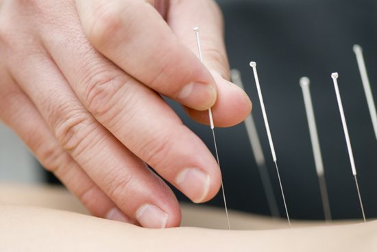 TCM acupuncture treatment for back pain