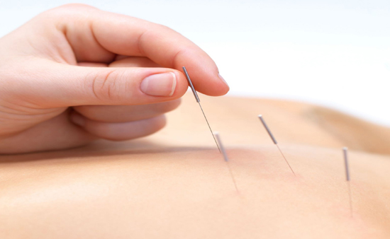 acupuncture for back pain cost