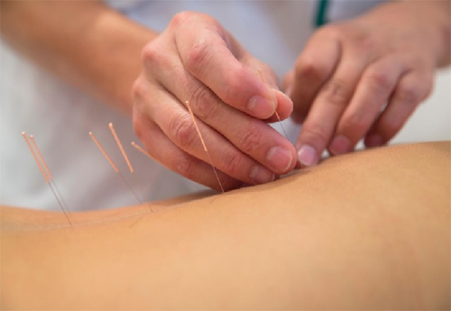 Acupuncture is most well-known of the TCM treatments in Singapore
