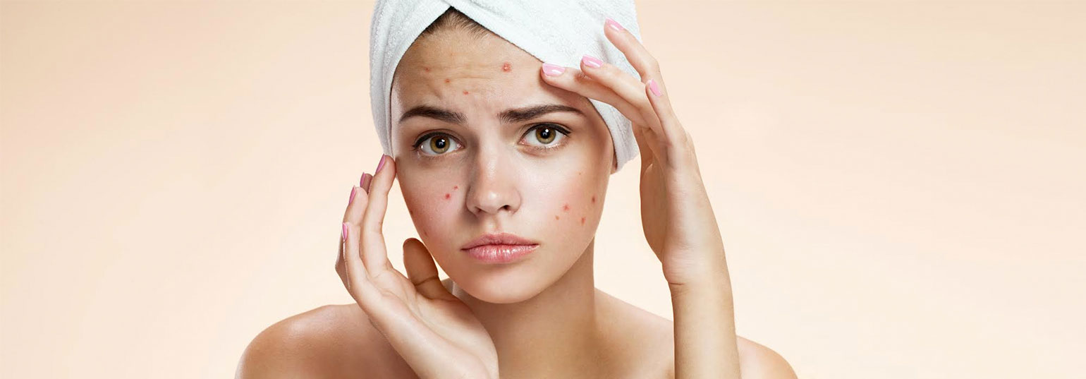 Quick and easy way to get rid of acne