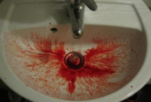 penyebab muntah darah