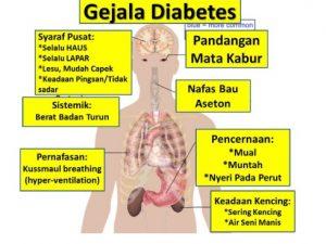 gejala-diabetes