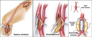Endarterektomi