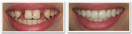 dental implants richmond hill